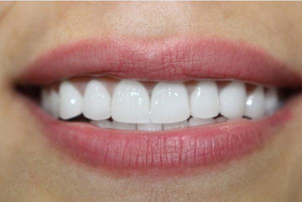 Bọc răng sứ giúp nâng cao tính thẩm mỹ cho cả hàm răng