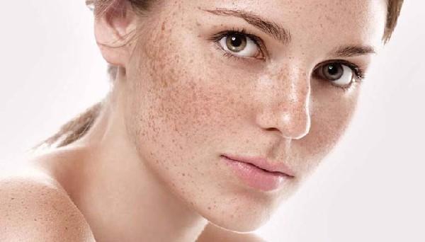 nám tàn nhang ảnh hưởng đến khuôn mặt